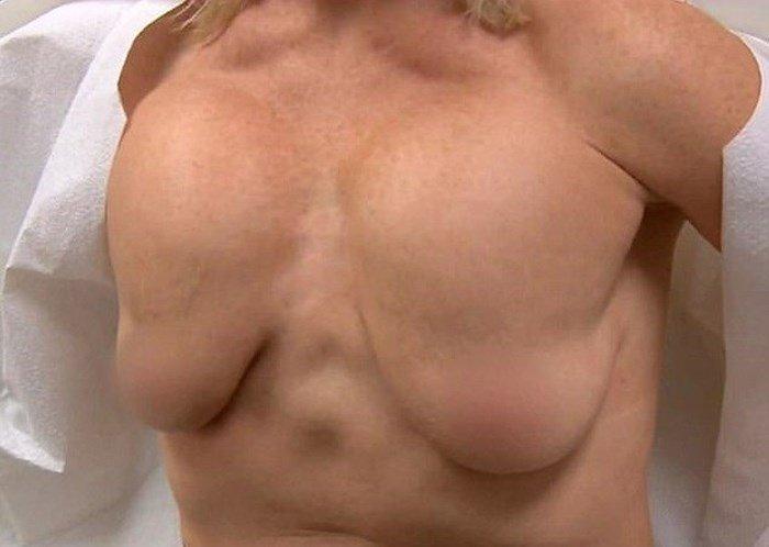 Mulher acaba com 4 mamas implante mal feito